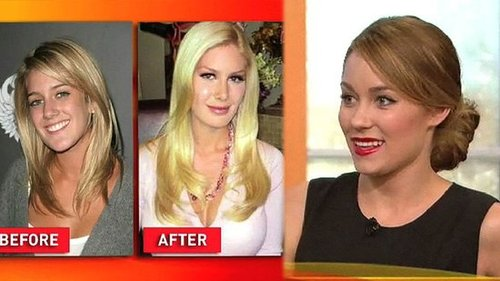 Lauren Conrad Comments on Heidi Montag's Plastic Surgeries