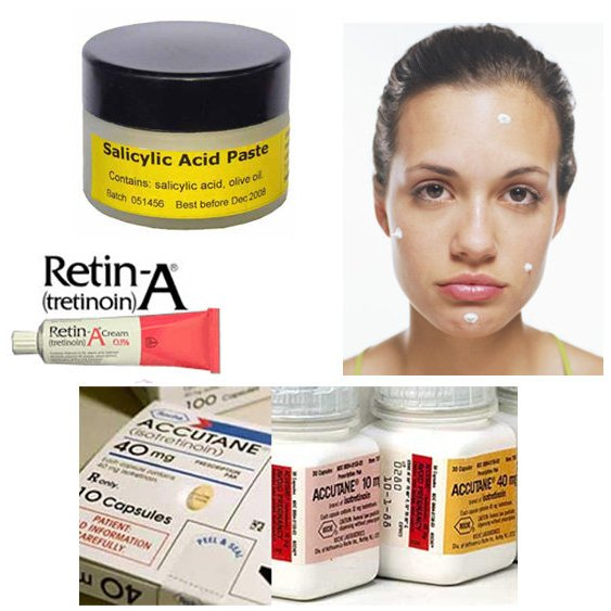 Acne Medications, Retinols, and Salicylic Acid