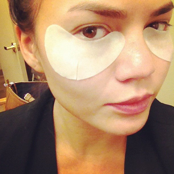 Chrissy Teigen tried a dramatic skin treatment under her eyes.  Source: Instagram user chrissy_teigen