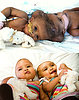 UK Surgeons Separate Rare Conjoined Baby Girls (PHOTO)