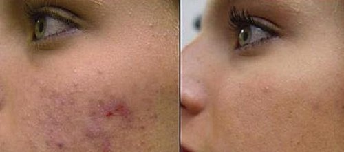 Acne Removal Facial 