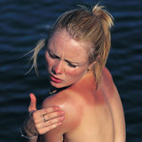 A Natural Approach: 3 Sunburn Remedies