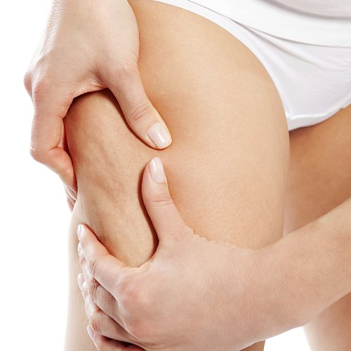 Cellulite Facts and Exercises For Reducing the Dimpling