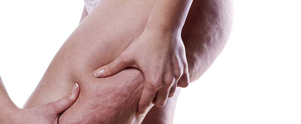 25 Things You Need to Know About Cellulite