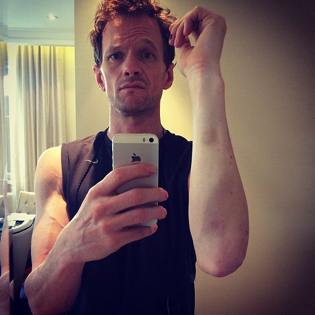 Neil Patrick Harris showed off a bruise he got during Hedwig and the Angry Inch. Source: Instagram user instagranph