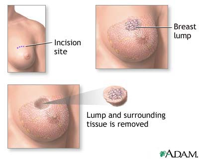 Lumpectomy Procedure