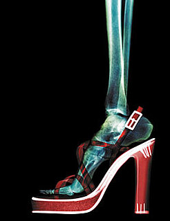 High Heels Can Be a Pain in the Neck