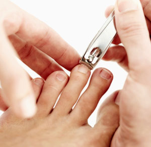How to Prevent and Treat Ingrown Toenails