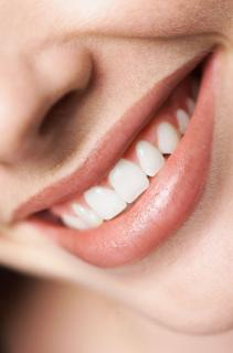 How to Whiten Teeth... Safely