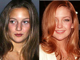 Has Kate Hudson had a nose job?