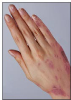 How Can I Clear Up My Eczema?