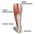 Ligaments and Tendons:  What's the Diff?